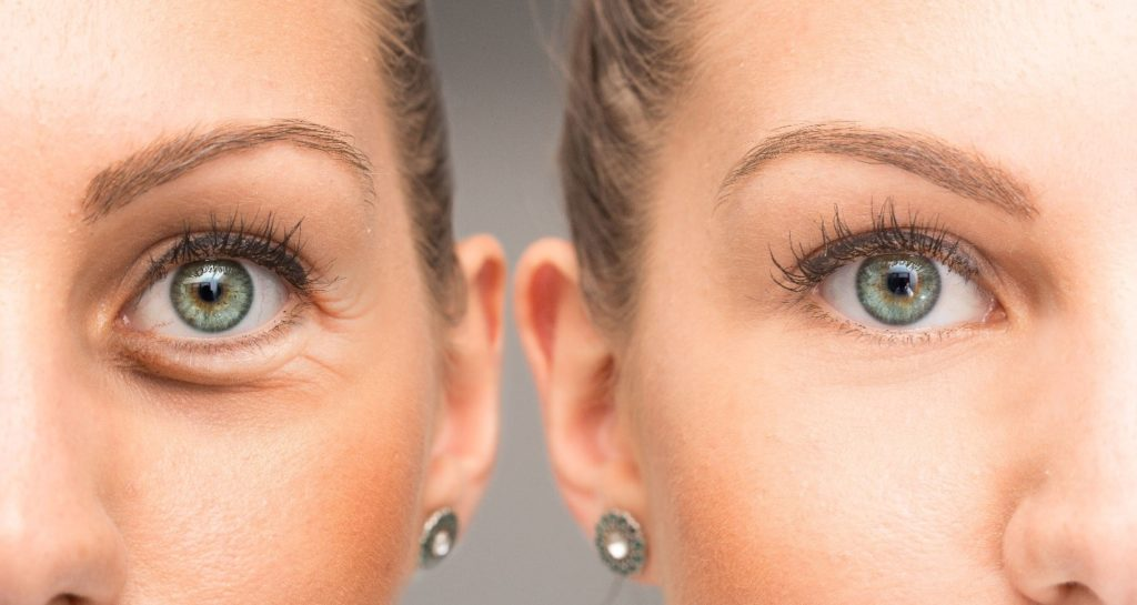 The Causes of Under Eye Bags; How to Fix Them