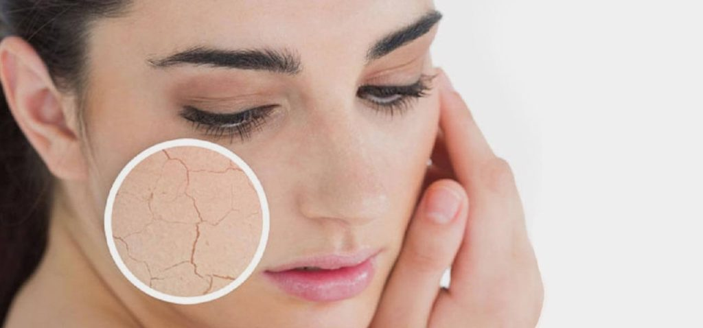 Causes of Dry Skin and How To Fix Them