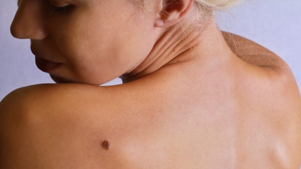 The 6 Most Neglected Body Parts in Skin Care