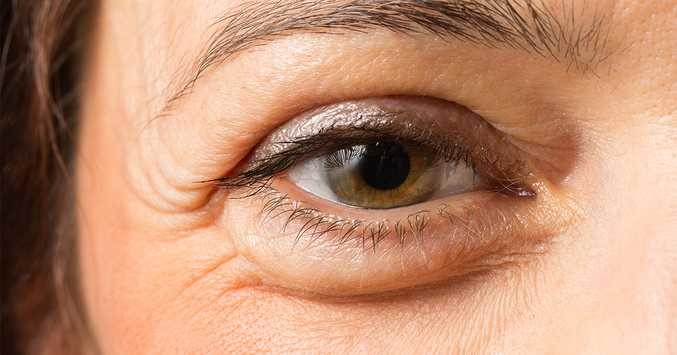 Puffy Under Eyes: The Common Causes and Fixes