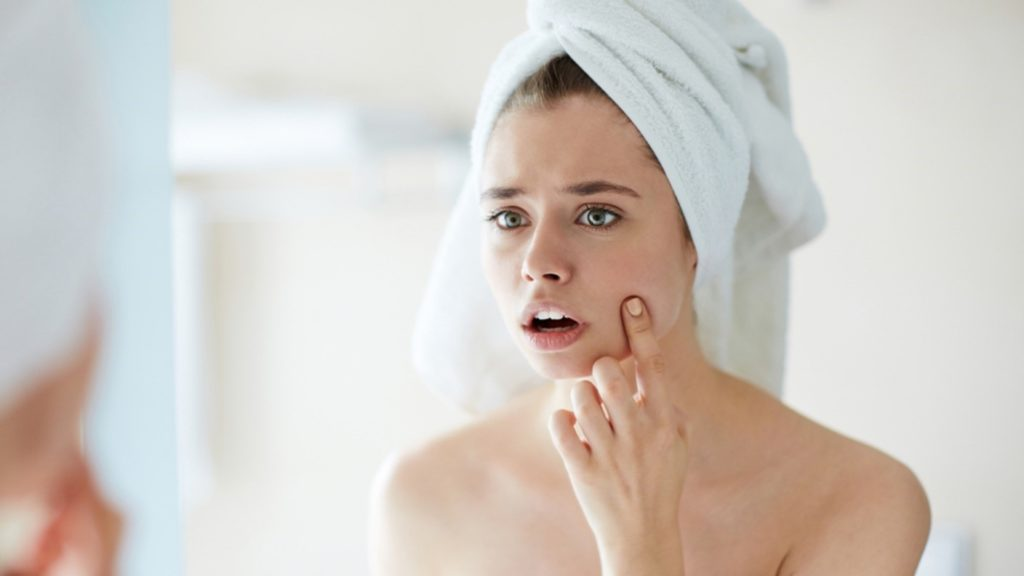 Blemishes and How to Get Rid of Them