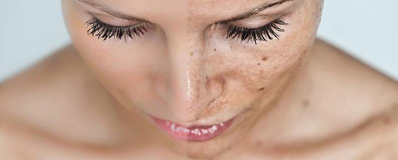 Skin Care Tips for Sun Damaged Skin