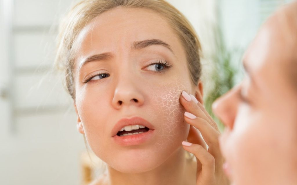 Treating Dry and Sensitive Skin Routine and Strategies